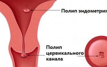 Полип цервикального канала шейки матки