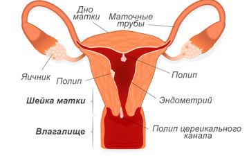 Полипы во влагалище: причины, симптомы, лечение, народные средства