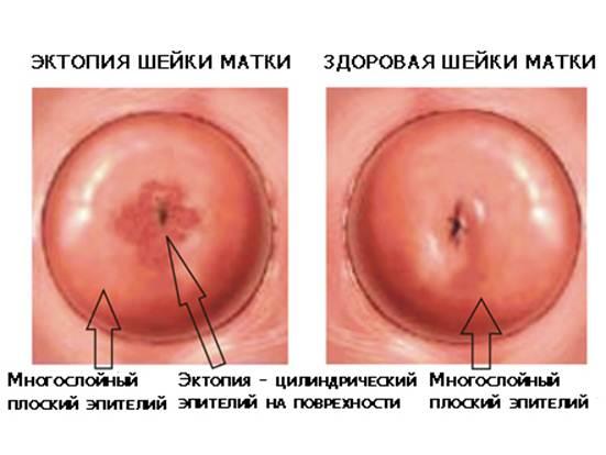 Дисплазия шейки матки у беременных 42