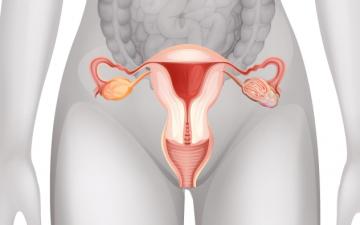 Причины миомы матки