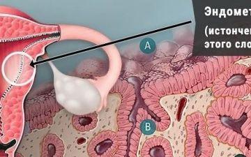 Лечение гипоплазии эндометрия