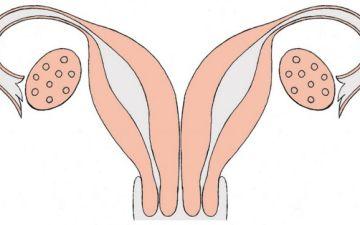 Что такое двурогая матка у женщин и какие причины ее возникновения