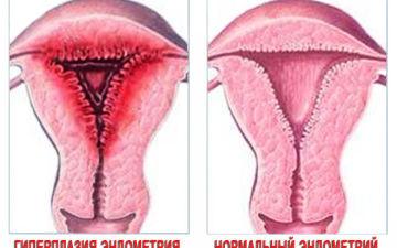 Что такое гиперплазия эндометрия, ее симптомы и лечение