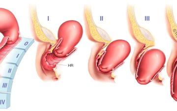 Симптомы и лечение опущения матки, последствия и образ жизни, отзывы пациенток