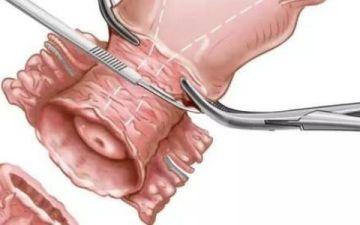 Дисплазия в шейке матки тяжелой (3-й) степени