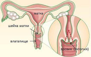 Признаки эрозии шейки матки