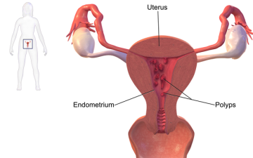 Что такое гиперпластический процесс эндометрия