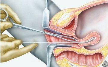 Как проводится диагностические выскабливание полости матки при гиперплазии эндометрия