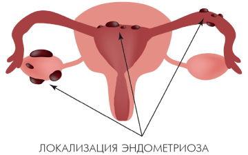 Симптомы и лечение наружного генитального эндометриоза