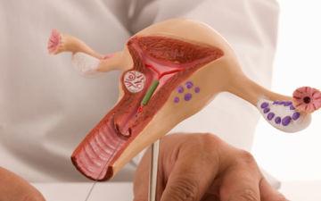Эктопия шейки матки (псевдоэрозия)