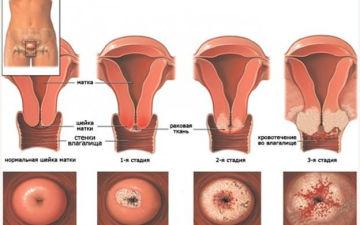 Что такое аденокарцинома матки и ее классификация