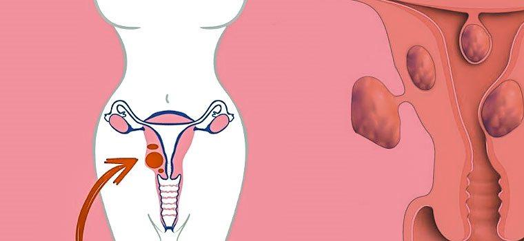 Как остановить рост миомы матки - Клуб Здоровья