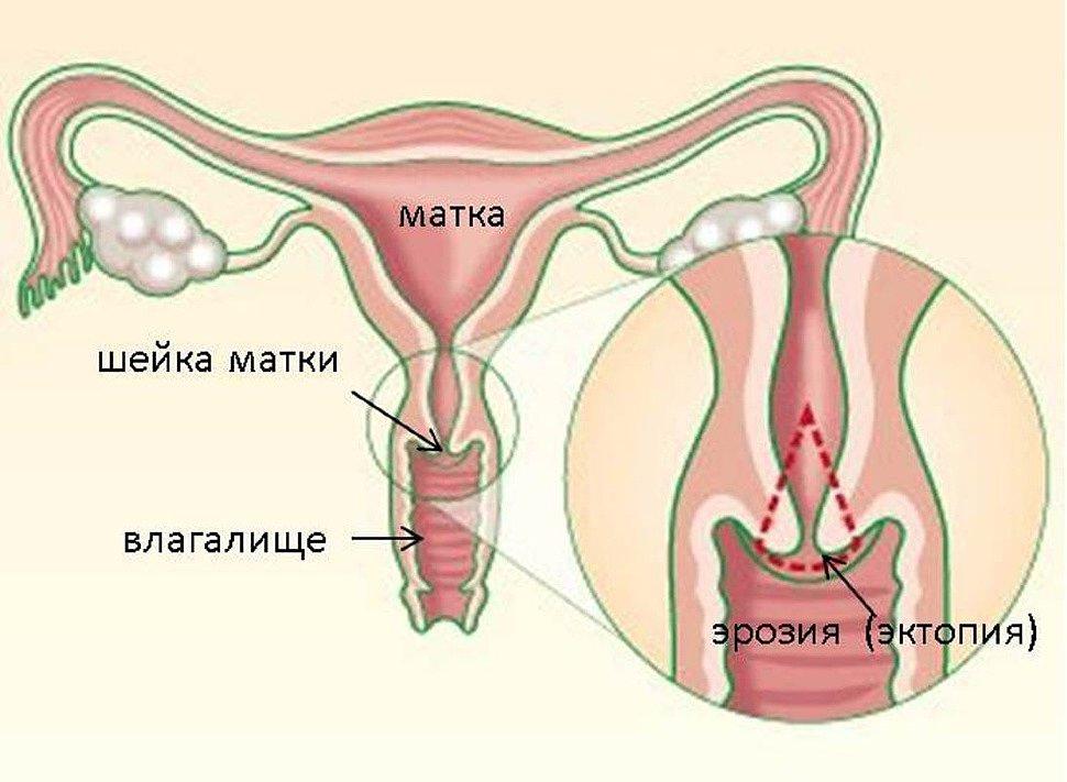 при эрозии шейки матки болит низ живота