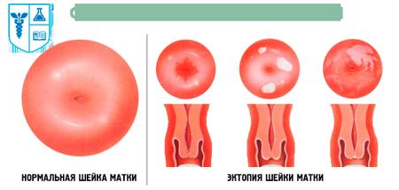 виды эктопии