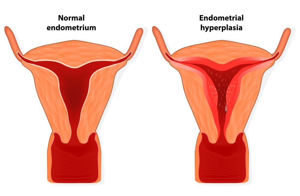 Тонкий эндометрий гинекология