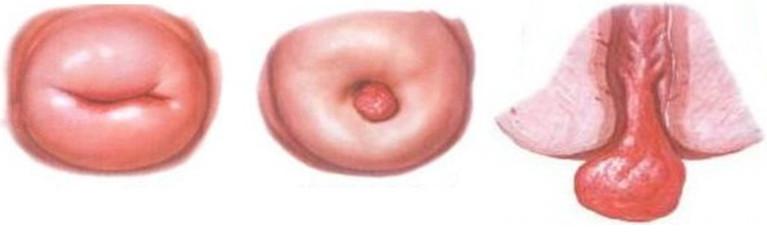 формы полипов