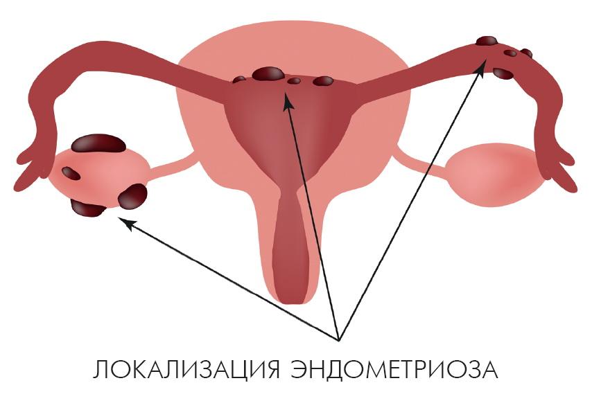 Миома матки на фоне внутреннего эндометриоза лечение