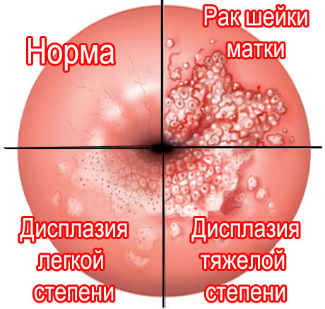 различия дисплазии по степеням